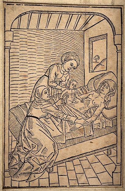 Dítě vyjmuté zlůna umírající matky (reprodukce zroku 1483)