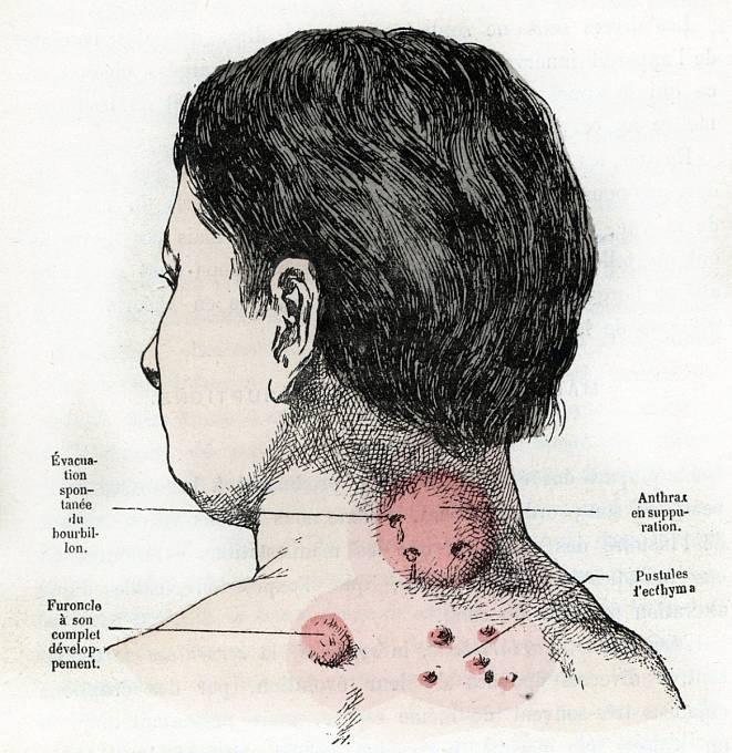 Nebezpečná nemoc děsila lidi od pradávna, ilustrační foto