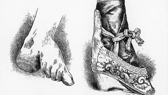 Lotosová chodidla