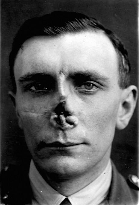 Plastika obličeje za první světové války