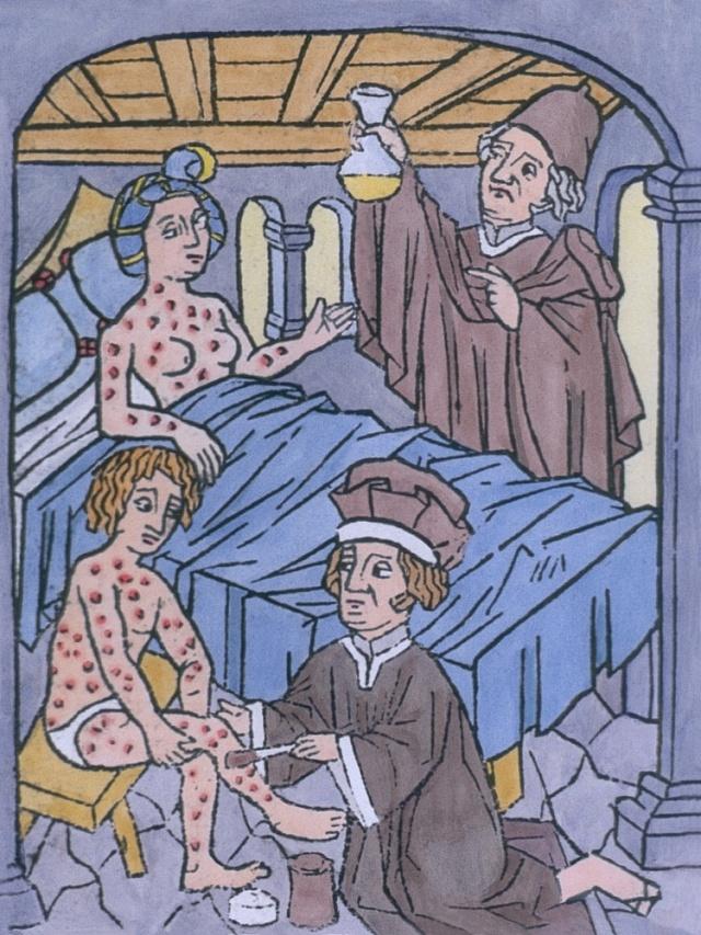 Syfilida měla vraném novověku hrůzný průběh.