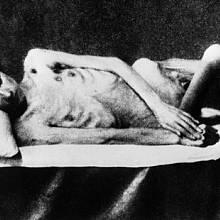 Na kost vyhublá těla mohlo normální jídlo zabít
