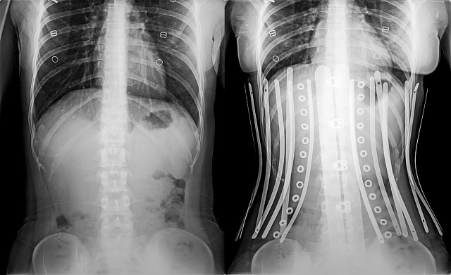 Korzety deformovaly těla