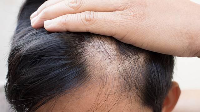 Vypadávání vlasů je strašák mužů i žen