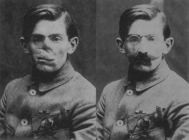 Zraněný voják bez masky a smaskou