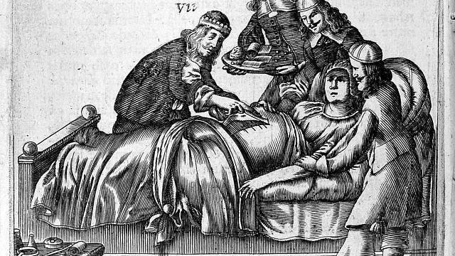 První císařský řez, který přežila matka i dítě, byl proveden v Praze roku 1337