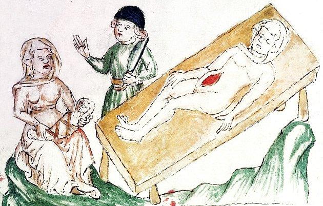 Císařský řez se téměř neobjevoval, i když někteří historikové spekulují o tom, že 'císařem' se narodil Václav I. Lucemburský