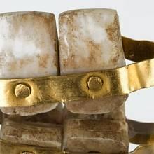 Protézy ze zvířecích či lidských zubů zhotovovali už Etruskové.