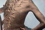 Jizvy po bičování - ilustrační foto