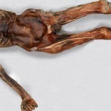 Tělo Ötziho