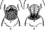 Anatomie ženského těla, jak ji lékaři popsali v roce 1903