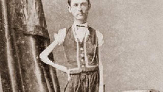 Isaac W. Sprague vážil při svých téměř 170 cm pouhých 20 kilo