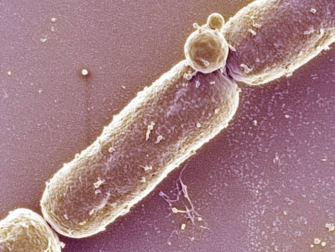 Bakterie antraxu