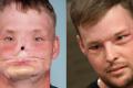 Andy Sandness se stal jedním z prvních, kdo podstoupil transplantaci obličeje