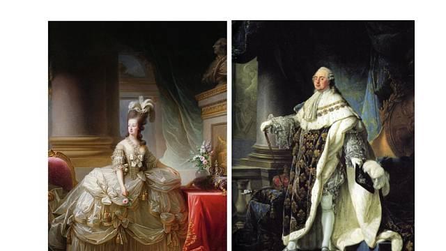 V naplnění manželství bránila Ludvíkovi a Marii Antoinettě fyzická vada na intimních místech