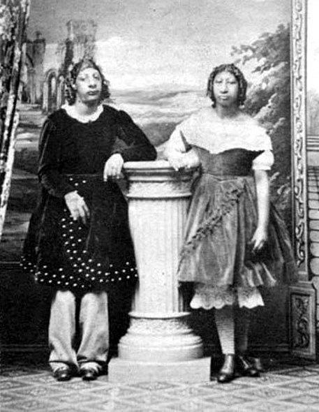 Maximo and Bartola byly děti zEl Salvádoru, které trpěly mikrocefalií. Lidské zoo je vydávaly za aztécké liliputány.