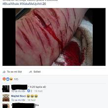 Reálné zranění, nebo fejk? Ukázka postu z veřejné facebookové skupiny navštěvované dětmi do 15 let