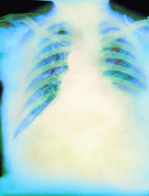 Rentgen tekutiny v plicích