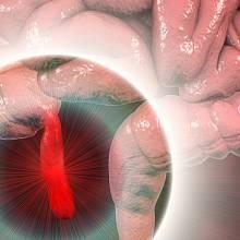 Zanícené slepé střevo může bez včasné operace přivodit smrt.