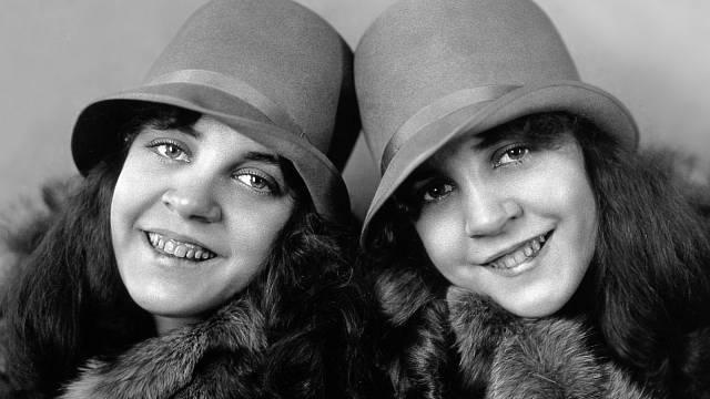 Další ze siamských dvojčat, sestry Daisy a Violet Hiltonovy