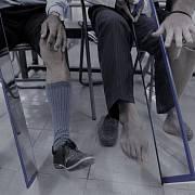 Pocity fantomové končetiny lze zmírnit zrcadlovou terapií