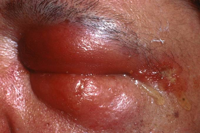 Člověk nakažený antraxem