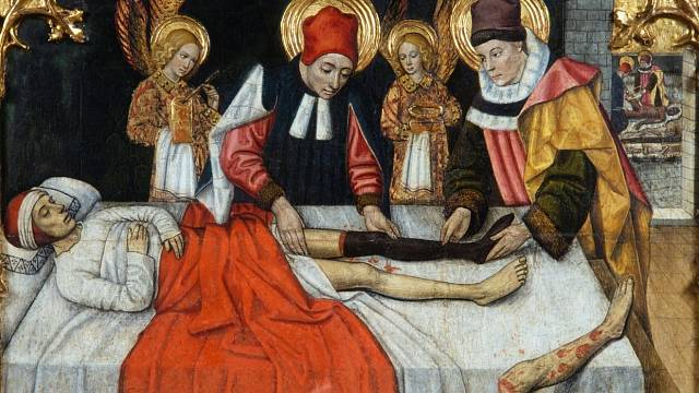 Amputace ve středověku mívaly drastický průběh.