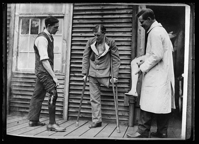 Fantomová končetina u zraněných ve válce
