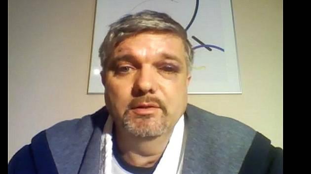 Zbitý Petr Srkal na záběru z videa, které je k vidění na portálu YouTube