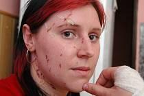 Mostečanka Lenka Güntherová si z nehody odnesla pořezaný obličej a zraněnou ruku.