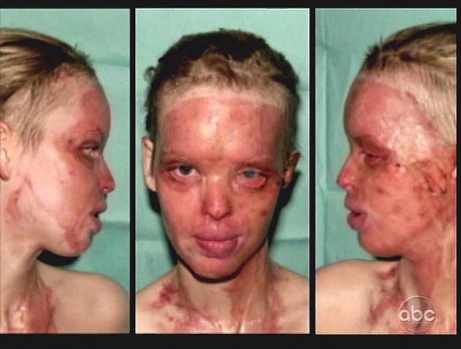 Katie pár týdnů po útoku před tím, než plastičtí lékaři započali svou práci.