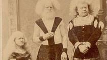 Rodina albínů.