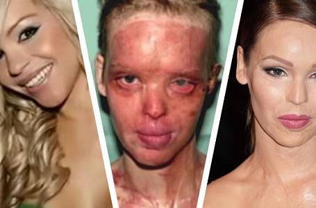 Katie Piper (33) znetvořil obličej útok kyselinou.