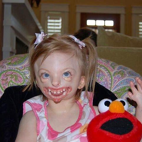 Sophie trpí silným postižením.