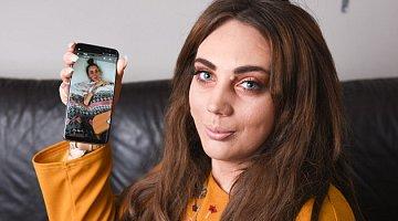 Hannah Lucas (23) jedla roky jen plátky jablka a jogurty. Co to udělalo s jejím tělem?