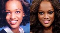 Tyra Banks by bez plastické chirurgie v modelingu zřejmě neuspěla.