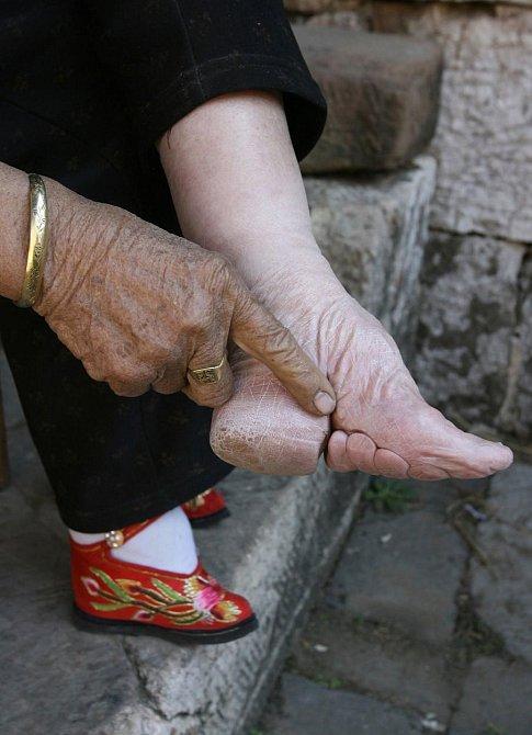 V Číně byla trendy malá chodidla