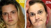 Před a po několika letech na drogách