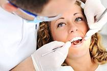 Dentální hygiena: Nechte si vyčistit zuby od profíka