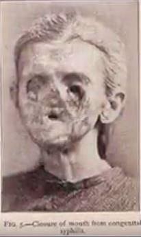 Co udělá s obličejem neléčený syfilis...
