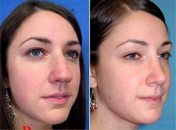 Když operace nosu totálně změní život