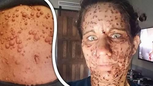 Libby Huffer (45) postihlo strašlivé onemocnění, které by jinou ženu zabilo, ona ale bojuje!