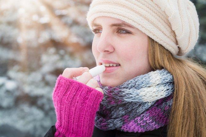 Dostatečná péče je v zimě velmi důležitá.