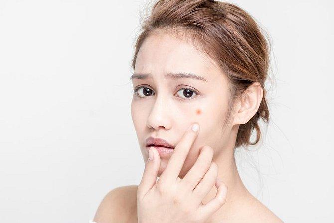 Ilustrační foto - redukuje akné
