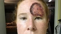 Bethany Greenway (39): V těhotenství se jí objevilo něco strašlivého na obličeji!