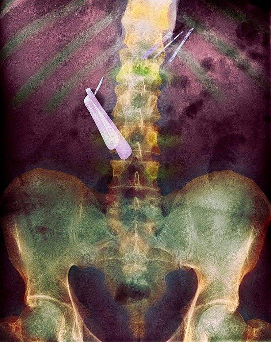 Toto je snímek pacienta s demencí, který spolknul několik různých typů břitev.