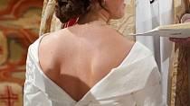 Svatební šaty odhalily jizvu po operaci páteře