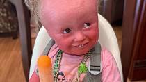 Kožní onemocnění ztrpčuje malé Anně život. Musí snášet bolest i nechápavé a posměšné pohledy lidí.