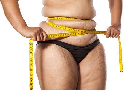 Nadváha, celulitida a strie.