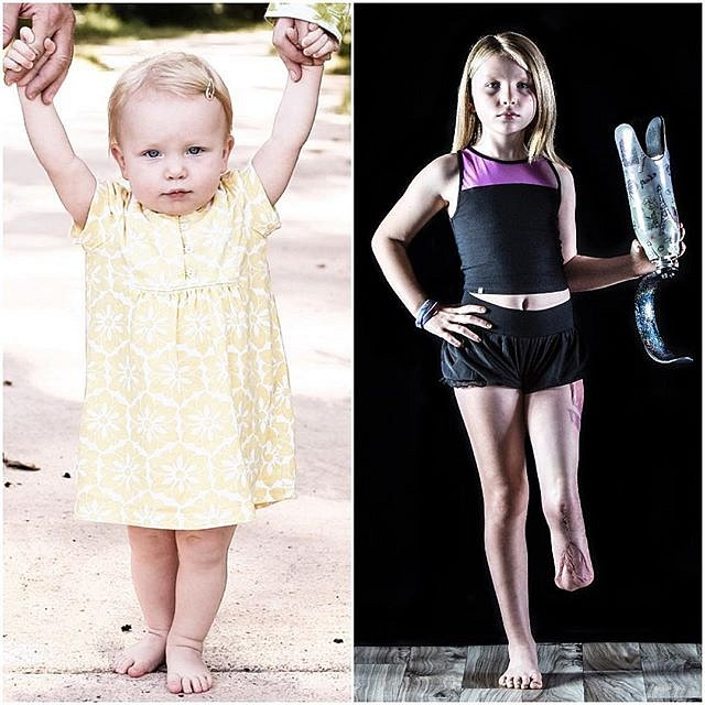 Narodila se jako zdravé miminko.